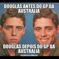 DOUGLAS ANTES DO GP DA AUSTRALIADOUGLAS DEPOIS DO GP DA AUSTRALIA